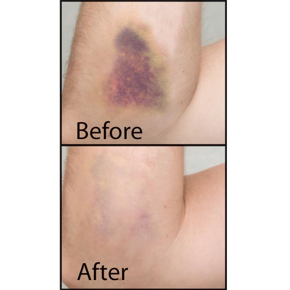 Healthful™ Bruise Cream - View 2
